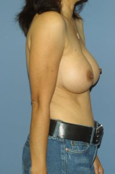 Breast augmentation in District of Columbia
