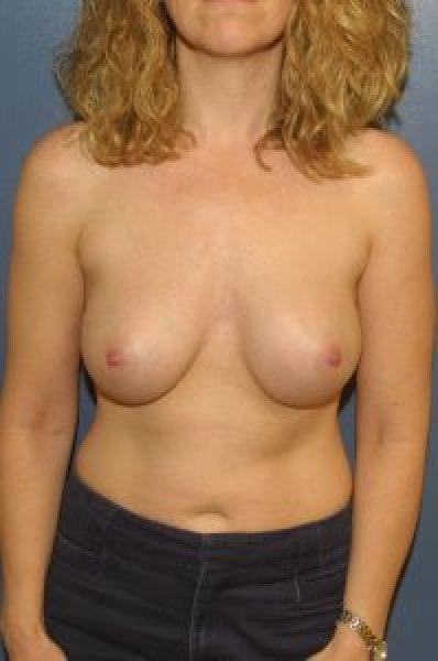 Breast implants in McLean, VA