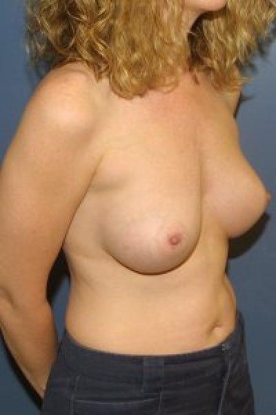 Breast enlargement in McLean, VA