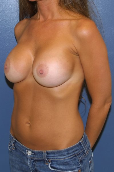 After breast augmentation in Baltimore