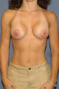 Breast surgery in DC