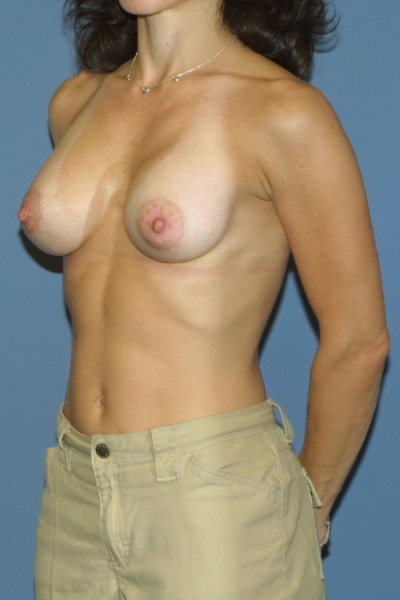 Breast surgeon in DC