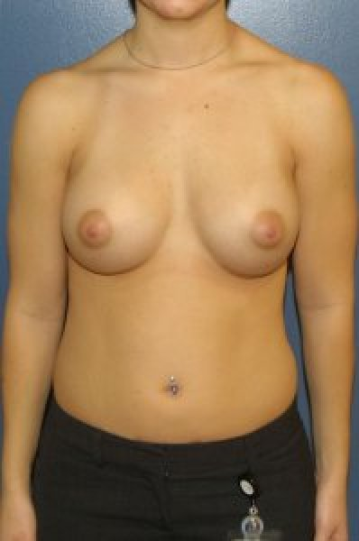After the submuscular implant