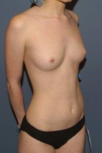 pencil test for breasts