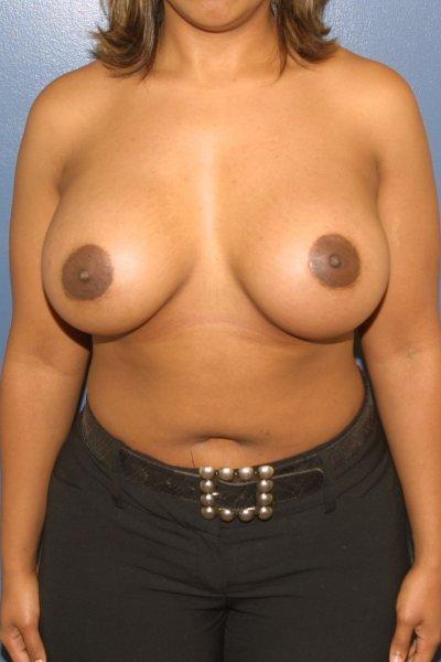 Breast surgeon in McLean, VA