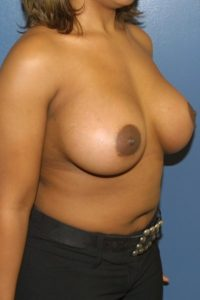 Breast enhancement in McLean, VA