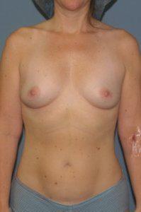 Before surgery in Washington