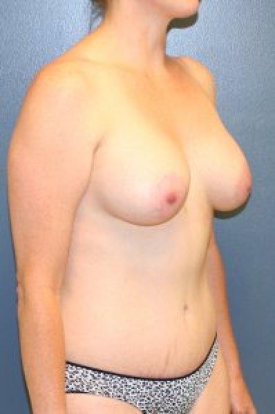 Breast augmentation in McLean VA