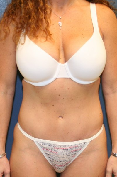 Best tummy tuck