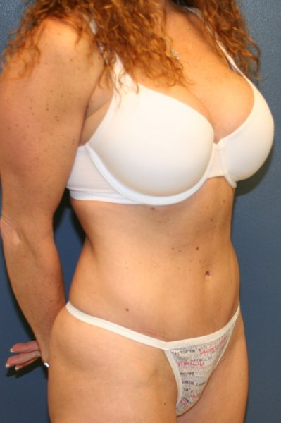 Top tummy tuck