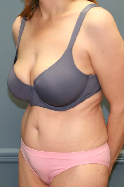 Top tummy tuck in MD