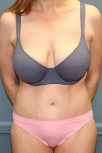 Top tummy tuck in VA