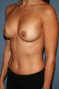 Breast augmentation in the District of Columbia