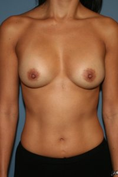 Breast enlargement in the District of Columbia