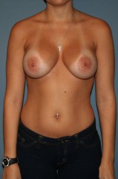 Cosmetic surgery in Virginia