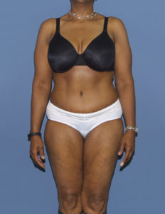 Tummy tuck surgeon in Rockville, MD