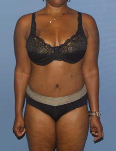 Tummy surgery in VA