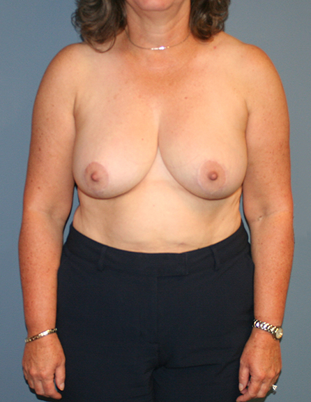 Breast reduction surgeon in MD
