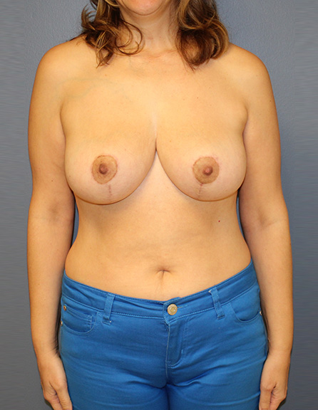 Implants removed