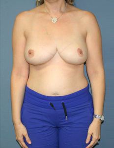 Best breast reduction in DC