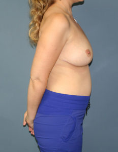 Best breast reduction in MD