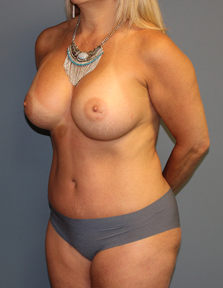 Mommy makeover rejuvenation in VA
