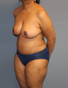 Breast reduction in Rockville