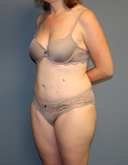 Liposuction in Virginia