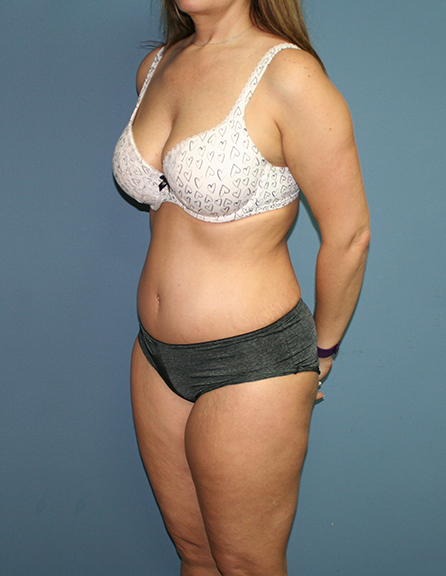 Tummy tuck specialist in Baltimore
