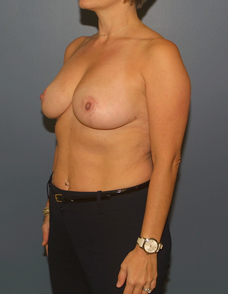 Breast reduction surgery in VA