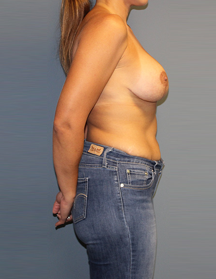 Mastopexy surgery in MD