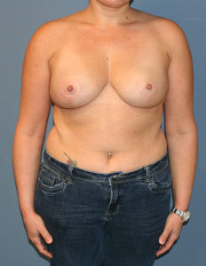 Best breast reduction group in MD
