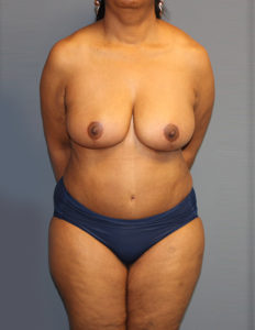 Breast reduction in McLean VA