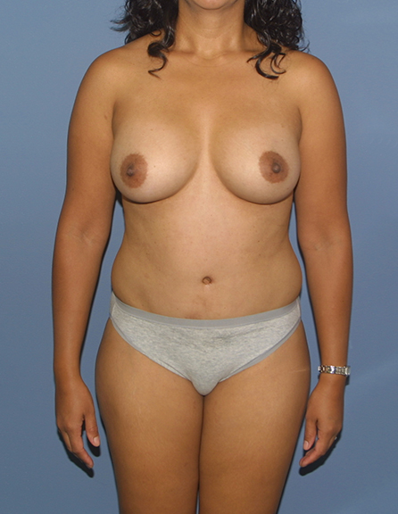 C section and tummy tuck Maryland