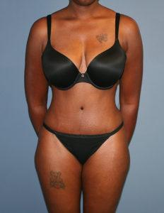 Plastic surgery abdominal