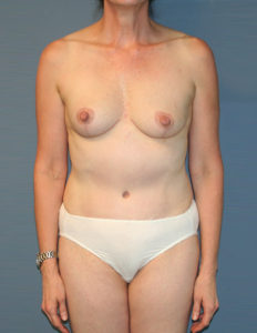 Mastopexy surgeon in DC