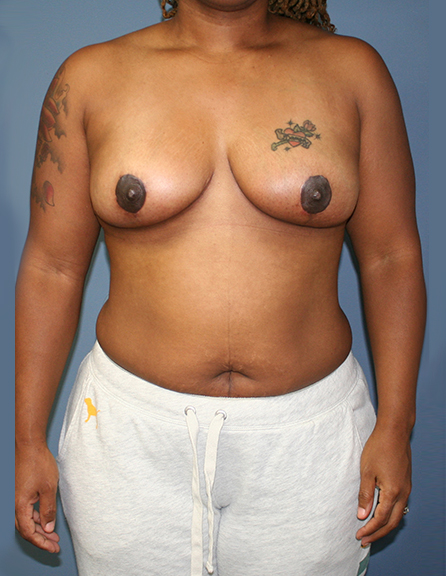 Mastopexy in McLean