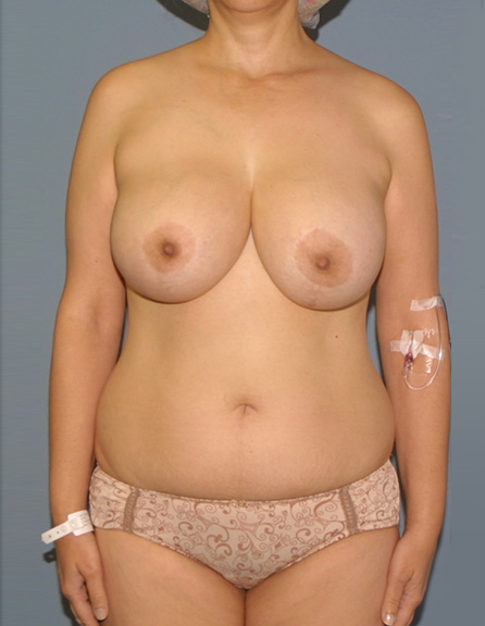 With implants