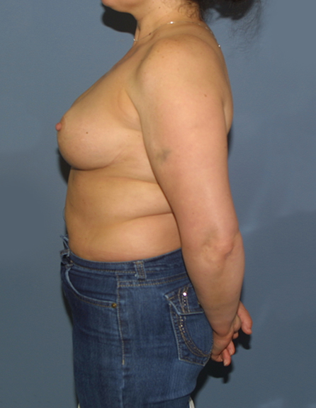 Best breast reduction group in VA