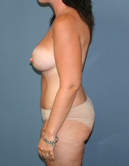 Breast implants in Virgina