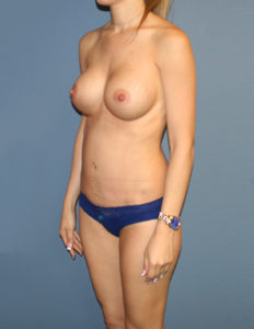 Tummy surgery