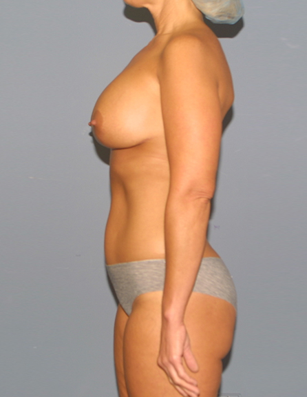 Breast enlargement and lift in Baltimore