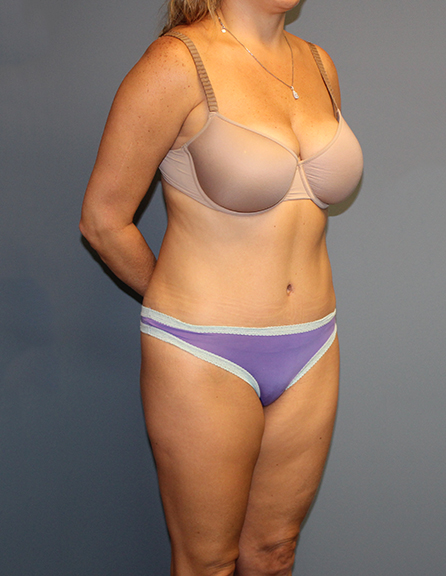 Top tummy tuck in McLean, VA