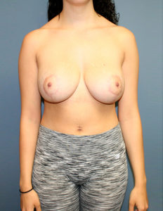 Mastopexy surgeon in VA