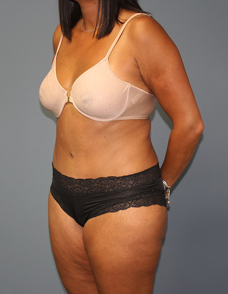 Abdominoplasty in Virginia
