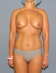 Breast enlargement and lift in Annapolis
