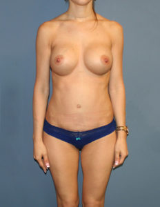 Breast lift no scar