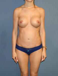 Breast lift no scar