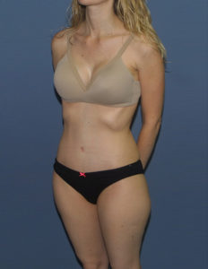 Tummy tuck correction surgery in the District of Columbia