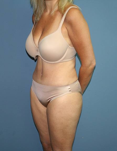 After abdominoplasty in DC